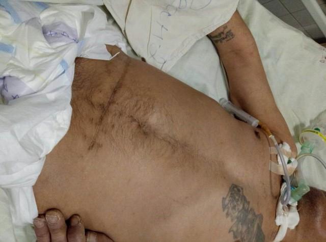 Помогите установить личность мужчины, который находится в больнице в неконтактном состоянии