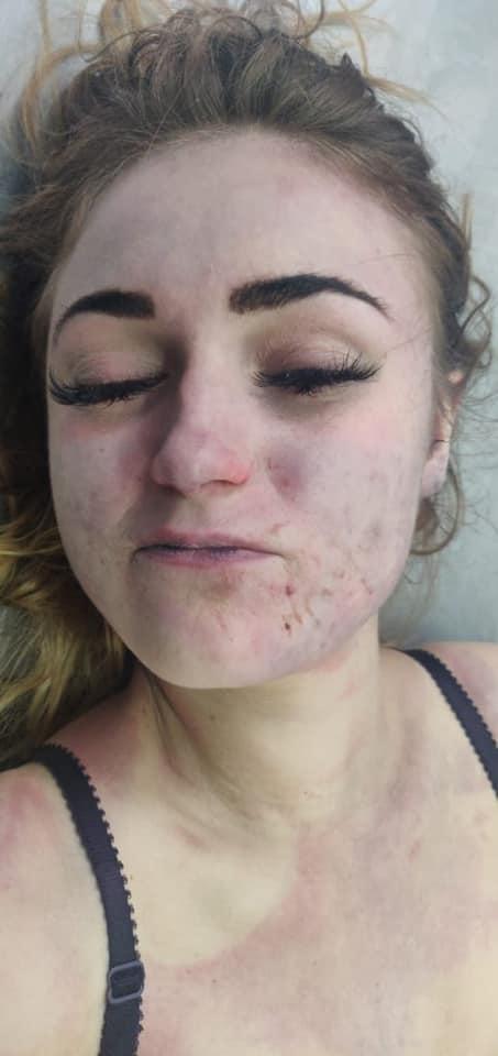 Полиция просит помощи в опознании тела девушки (фото 18+)