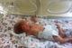Новорожденный Мирон Балацкий нуждается в нашей помощи!