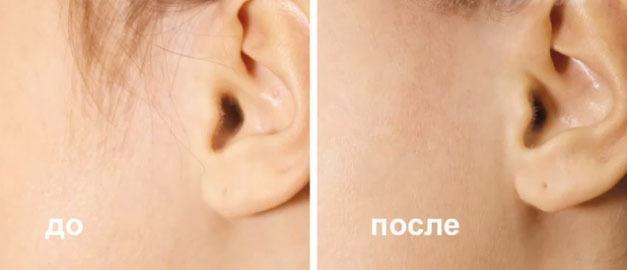 Лазерная эпиляция днепропетровск г.одесса салоны лазерная эпиляция