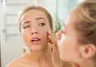 Борьба с сухостью: почему у тебя сохнет кожа и как это исправить?