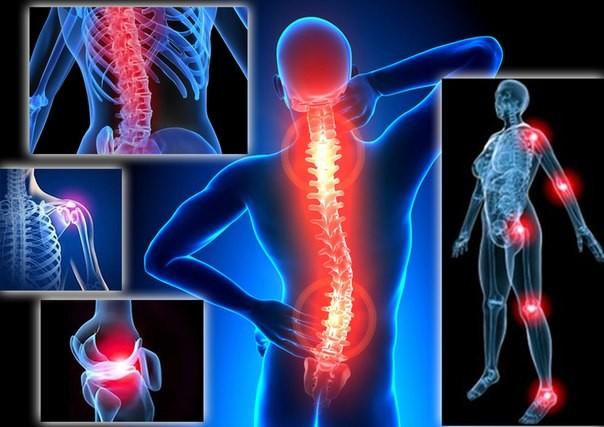 Какие есть заболевания позвоночника и суставов